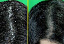 خلطات طبيعية للقضاء على القشرة من الشعر
