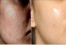 ماسك طبيعي ومدهشة لعلاج المسام الواسعة