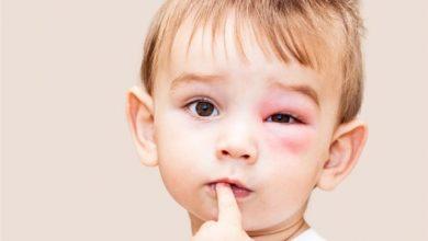 افضل 8 طرق منزلية لعلاج كدمات الوجه