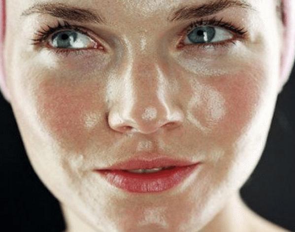 6 طرق طبيعية للعناية بالبشرة الدهنية