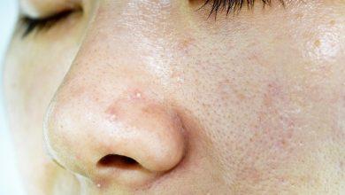 9 علاجات منزلية للبشرة الدهنية