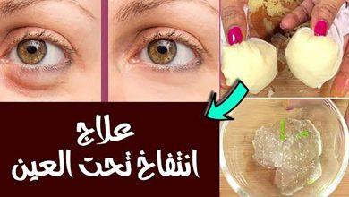 أسهل طريقة لعلاج انتفاخ تحت العين
