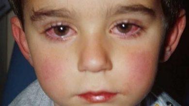أسباب احمرار العين عند الأطفال وطرق الوقاية منها