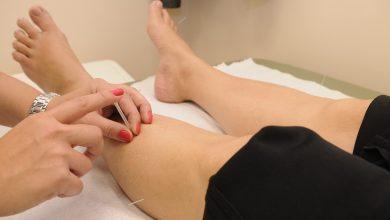 العلاج الطبيعي والتقلصات والتشوهات العضلية الهيكلية