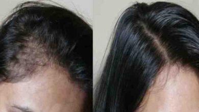 الوصفة العجيبة و الرهيبة لتكثيف الشعر وحل مشكل الصلع