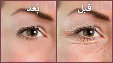 وصفات طبيعية جد فعالة لتجاعيد الوجه والعينين