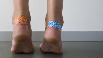 3 طرق منزلية سهلة لعلاج تقرحات القدمين
