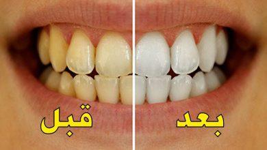 4 وصفات طبيعية لتبيض الأسنان في يوم واحد