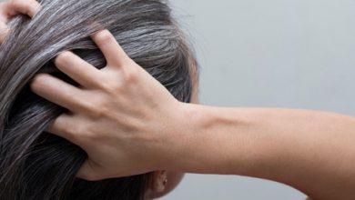 7 طرق لعلاج الشعر الابيض المبكر