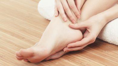 تبييض القدمين وتوحيد لونها بخلطة سريعة المفعول