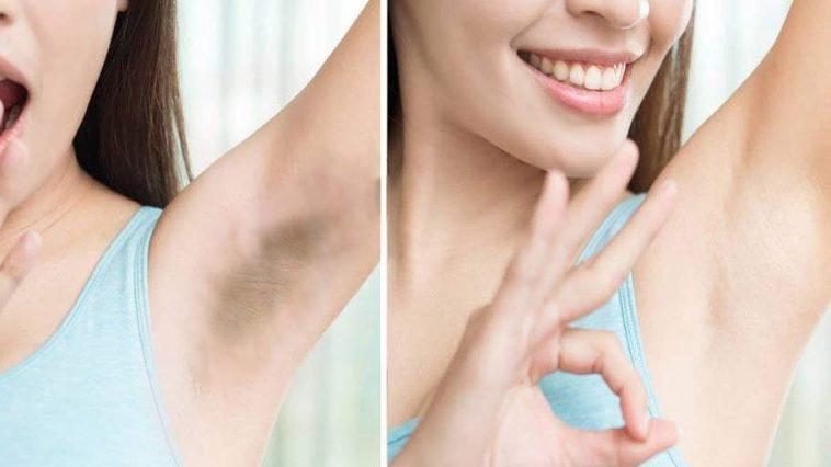 خلطة زيت النمل والزنجبيل لتخفيف نمو الشعر الزائد