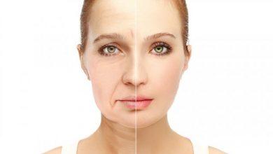 علاج ترهل البشرة في سن الثلاثين