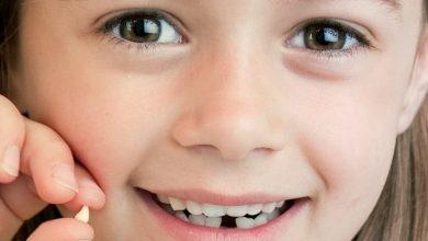 لماذا تسمى الاسنان اللبنية بهذا الاسم