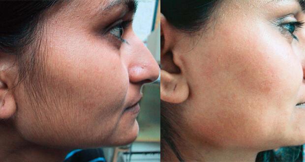 ماسكات طبيعية لازالة الشعر من الوجه بصفة نهائية
