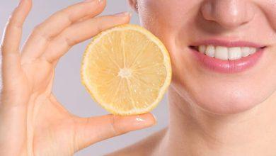الليمون وزيت جوز الهند لتبييض الأسنان