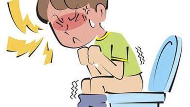 علاج الحرقة والألم التي تتبع خروج البراز
