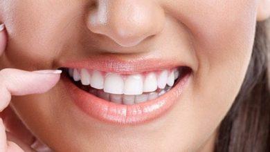 علاج تآكل الأسنان بالأعشاب
