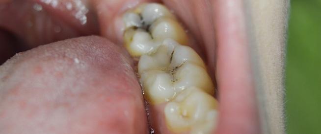 ما السبب المحتمل لتسوس الأسنان
