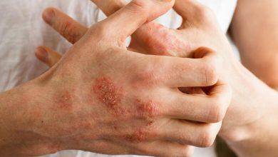 هل يمكن الشفاء التهاب الدم، وما مدى خطورته؟